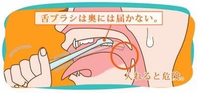 ルブレンナイト・喉奥のケア